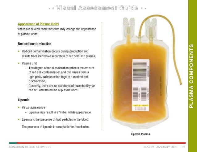 blood component visual inspection guide