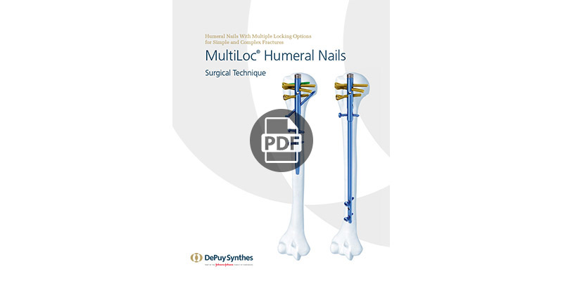 synthes humeral nail technique guide